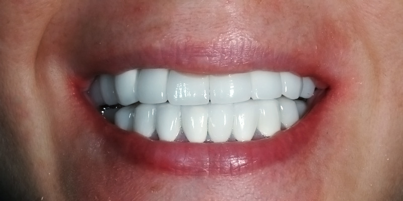 Dental Implant Case Study