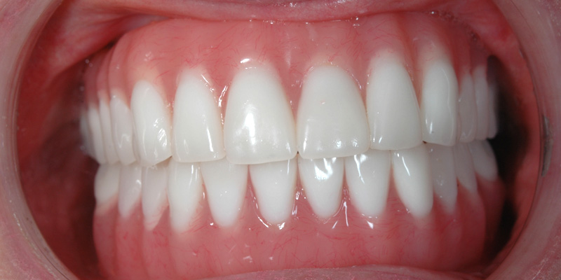 Implant Case 5a