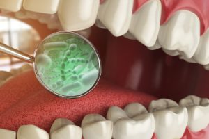 Bacteria and Microbes around Tooth